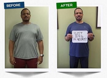 Weight Loss Green Bay WI Joe Testimonial